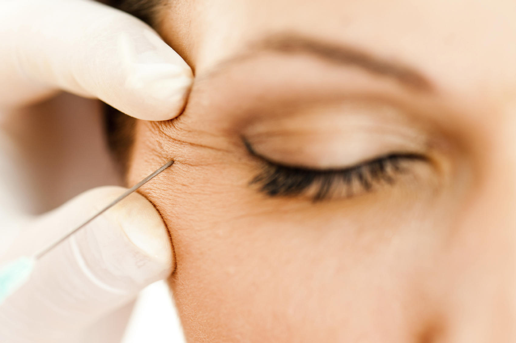 Macro closeup of botox injection near eye